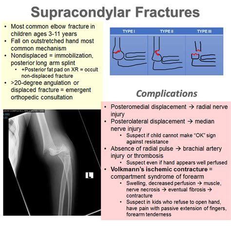 basics supracondylar fractures em daily