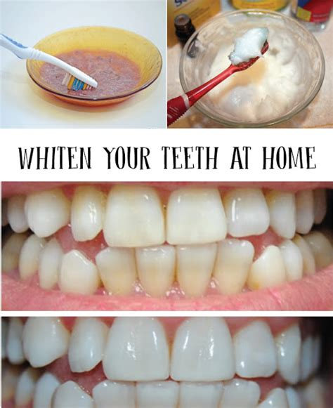 whiten your teeth at home tips for a beautiful smile all