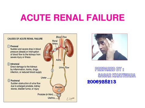 renal failure renal failure causes symptoms treatment renal failure