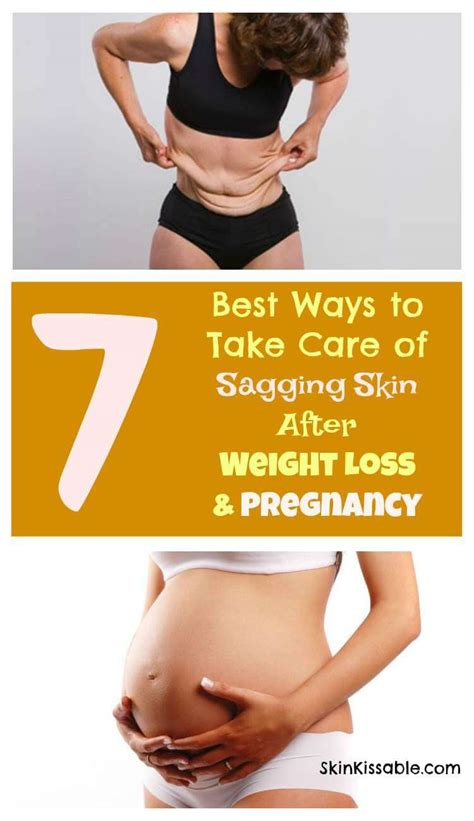 how to get rid of saggy skin after c section sagging skin from weight loss pregnancy what are the