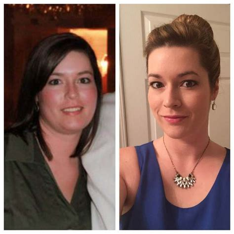 weight management after thyroidectomy 1000 images about hypothyroid before and after photos on
