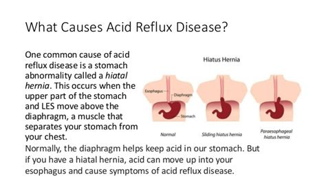 acid reflux how to treat acid reflux and prevent heartburn and chest acid re