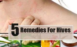 hives home remedy 5 home remedies for hives treatments cure for