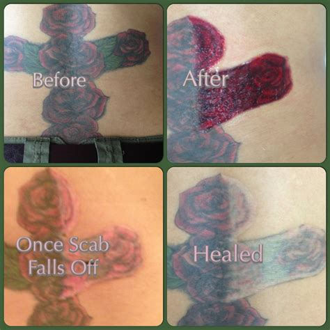 laser tattoo removal infection non laser removal san antonio mad makeup