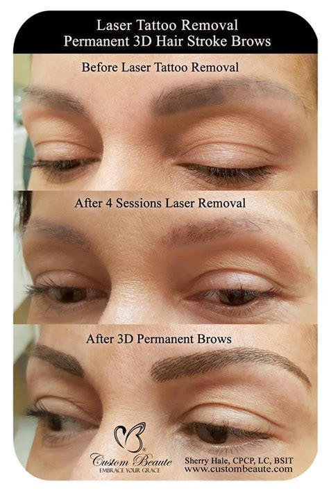 removing eyebrow tattoo laser removal permanent makeup eyebrow mugeek