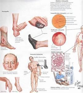 Псориаз Симптомы И Лечение На Голове