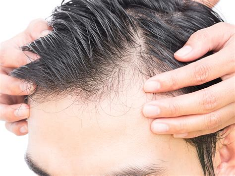 hair transplantation in mumbai reviews dhi hair transplant reviews dhi hair transplant cost