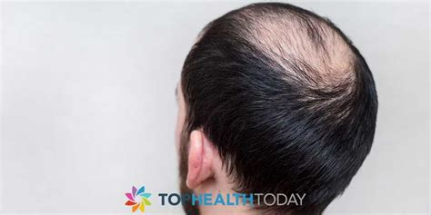 female pattern hair loss dht dht the main component of male hair loss top health today