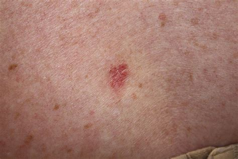 basal cell tumor basal cell carcinoma on back