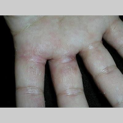is eczema caused by poor hygiene eczema herbal remedies