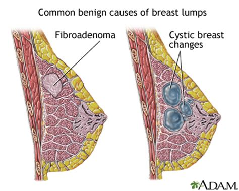 how do i stop male breast buds quickly healthtap breast lump