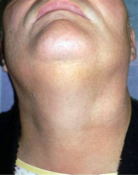 lump on lump in neck images