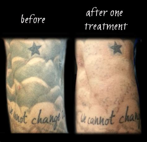 laser tattoo removal itching laser removal