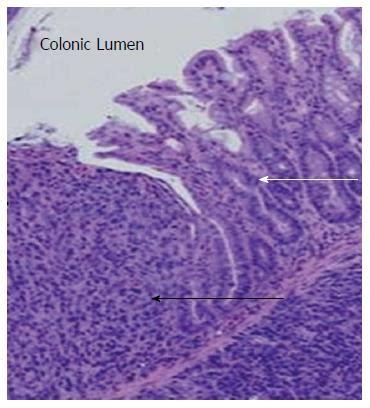 Animal Models Of Human Colorectal Cancer Current Status