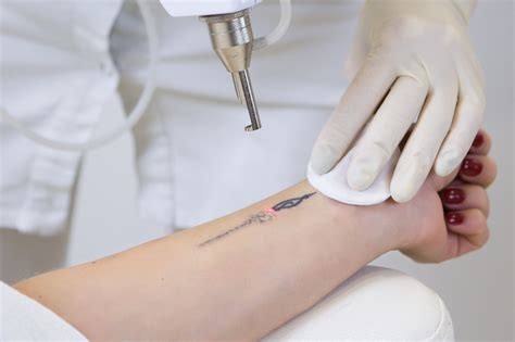 tattoo removal does it work how does laser removal work 7 facts you need to