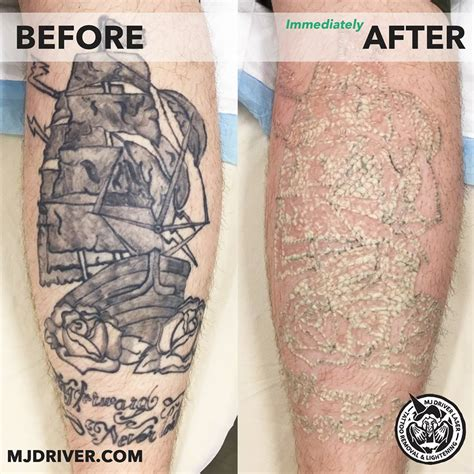 gold coast tattoo removal mj driver laser removal lightening get ink