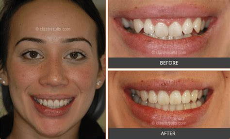 cfast braces real results traceybell