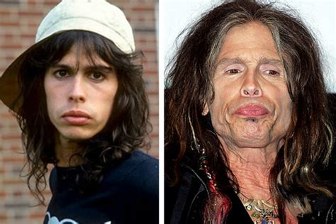 celeb before and after pics drugs vs celebs before and after