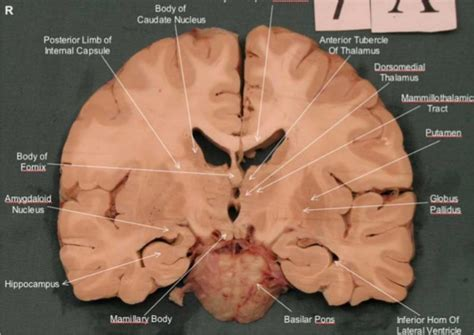 brain section brain sections anatomy