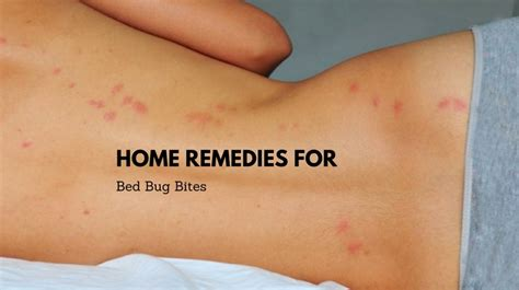 effective remedies   rid  bed bug bites