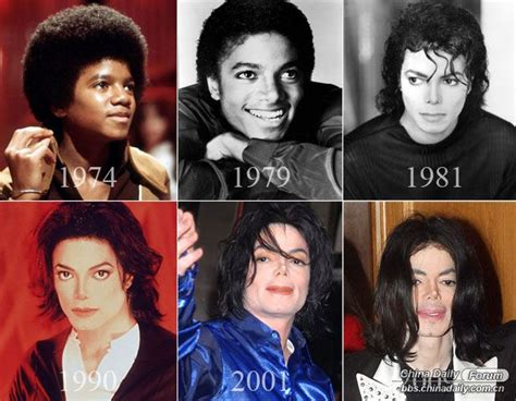 what was wrong with michael jackson worst celebrity plastic surgery fails 1 chinadaily com cn