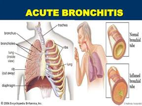 how to treat bronchitis at home home remedies for bronchitis