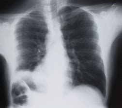 Mesothelioma Settlement Fund 2 by Researchers Possible Link Between Ipf And Asbestosis