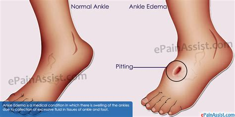 How To Relieve Swelling After Section by What Causes Ankle Edema And Ways To Get Rid Of