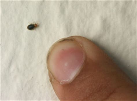 Do Bed Bugs Come Out During The Day bed bugs and your apartment insects in the city