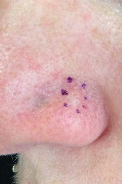 scaley lesion ulcer face skin cancer lesions and sites 4d skin cancer laser clinic