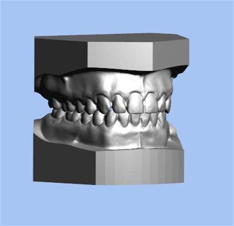 digital models 3d digital dental model services diagnostic dental
