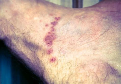 scabies images symptoms  treatments