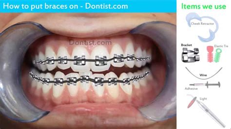 How To Make Vire Teeth Out Of Paper - getting braces is easy how to put on braces