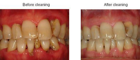 Pembersihan Karang Gigi Di Dental Pembersihan Karang Gigi Scaling Dentalogy