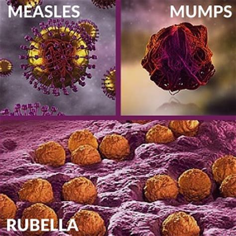the sources and modes of infection classic reprint books measles mumps rubella mmr