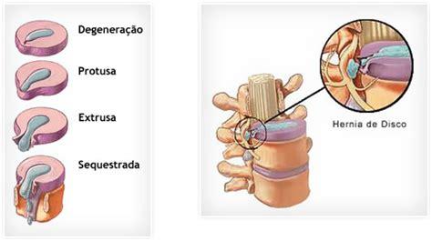 ernia obliqua interna dor lombar lombalgia causas sintomas e tratamentos