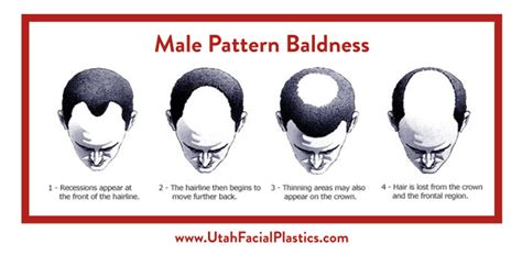 male pattern baldness quiz male pattern baldness treatment slc utah facial plastics