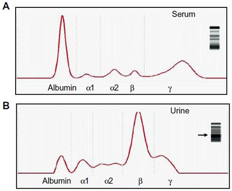 protein electrophoresis urine text overflow proteinuria as a manifestation of