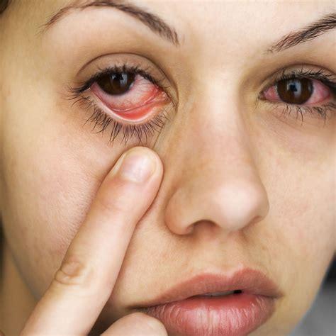 eye allergies mcallen tx ocular allergy testing candidates for diagnostic eye exams