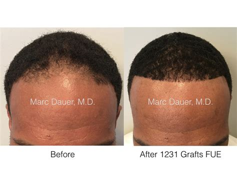 african american hair transplant eyebrow transplant archives hair transplant los angeles