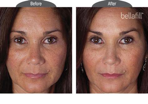 bellafill for results of acne scars bellafill san diego acne scar treatment in san diego