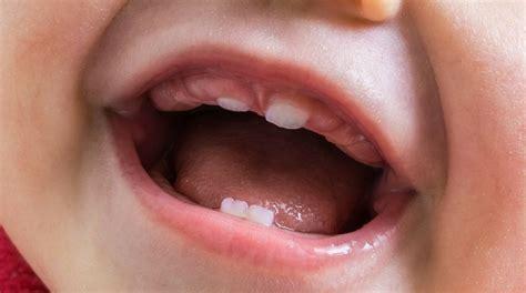 cuando le salen los dientes a los bebes cu 225 ndo les salen los dientes a los beb 233 s cronolog 237 a de la