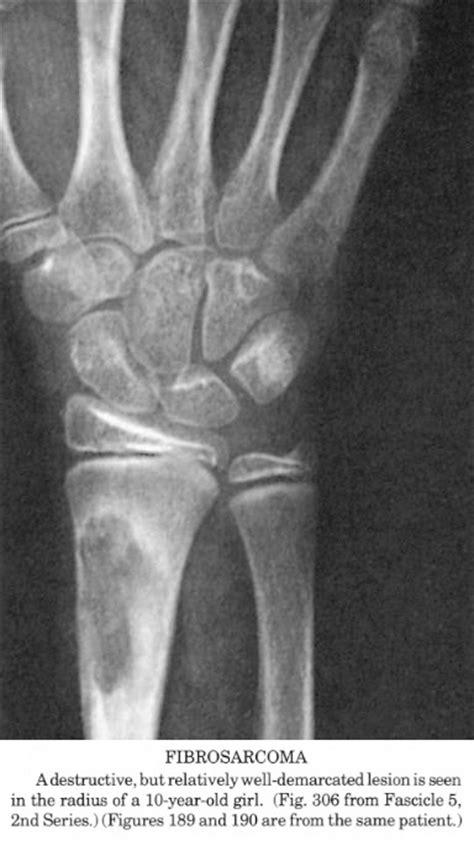 Pathology Outlines - Fibrosarcoma of bone