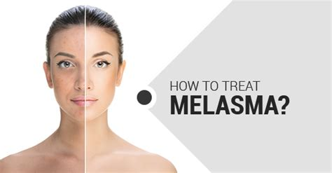 what is melasma and how to treat it fairview laser