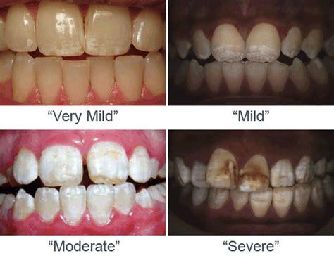 dental anomalies dentistry   garrett