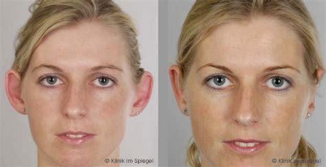 aesthetic surgery ear correction otoplasty klinik im