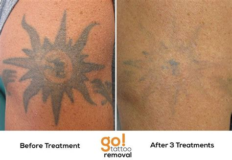 best tattoo removal boston pin by go removal on removal in progress