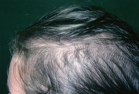 nioxin female pattern hair loss picture of female pattern baldness