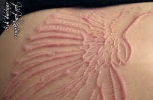 Lightning Scar Skin Struck By Lightening Scar Pictures To Pin On