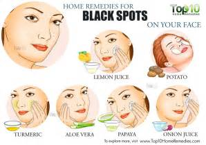 How To Take Away Dark Spots On Face by Home Remedies For Black Spots On Your Face Top 10 Home